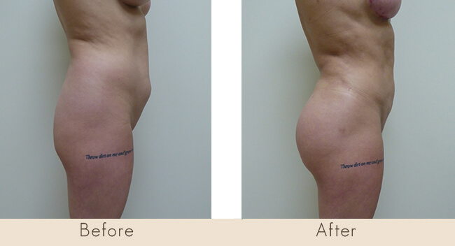 Liposuction to Full Abdomen, Back, Waist/Hip, Mons Pubis & Fat Transfer to Buttocks