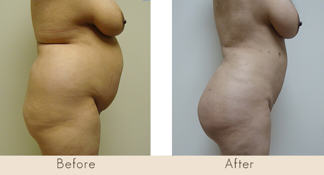 Liposuction to Back, Waist and Full Abdomen with Fat Transfer to Buttocks