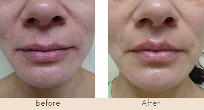 16 Day Post Surgery Upper Lip Lift
