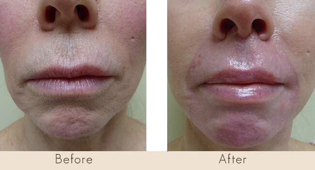 6 Week Post Surgery - CO2 Laser Perioral with Upper Lip Lift (No Fillers were used. Pink and Red will fade over time.)
