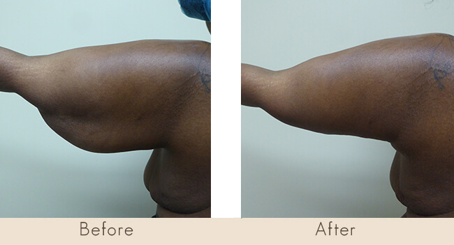 6 Week Post Surgery - Posterior Arm Tuck