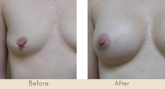 6 week post surgery - Endobam Left Implant 200-225cc Right Implant 200-240cc Moderate Profile Under Muscle with Bilateral Nipple Reduction