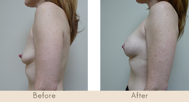 Endobam Left Implant 200-225cc Right Implant 200-240cc Moderate Profile Under Muscle with Bilateral Nipple Reduction
