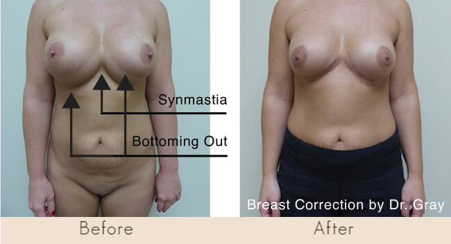 The photo preoperatively on the left demonstrates a patient who underwent a breast augmentation by another surgeon who put both implants outside the lower margins of the breast. If you look closely you can see that the breast implants are falling down her abdomen. The arrow points to what we call bottoming out deformity. If you look even closer you can see that the skin over the breastbone is lifted and she has what is called a synmastia. Due to the prolonged nature of this problem the skin on the bottom when repaired would no longer sit properly on the body. The skin grew over time is now extra, and will not lay flat. This patient was told preoperatively that this extra skin would need to be excised and she would have as car under both breasts. The scar fades over two years. Dr. Gray corrected the botched procedure.