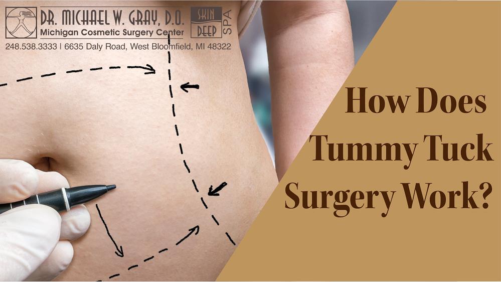 Tummy Tuck Surgery michigan