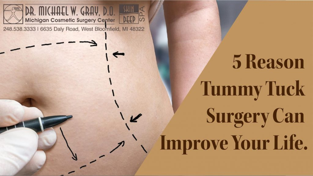 5 Reasons Tummy Tuck or an Hourglass Tuck Surgery Can Change Your Life