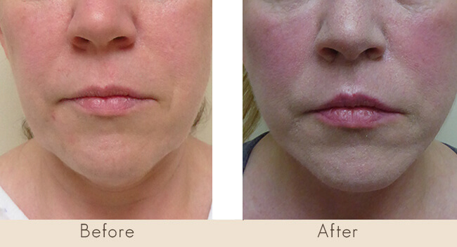 6 Weeks Post Surgery - Upper Lip Lift