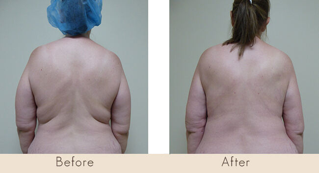 6 Week Post Surgery - External Ultrasonic Liposuction to Back with Smart Laser Liposuction to Back