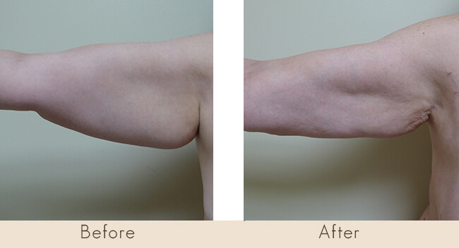 6 Weeks Post Surgery - External Ultrasonic Liposuction with Smart Laser Liposuction to Back of the Arms
