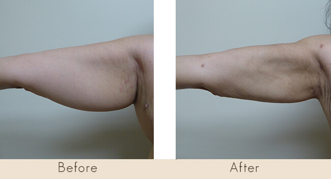 6 Week Post Surgery - External Ultrasonic Liposuction to Back of the Arms