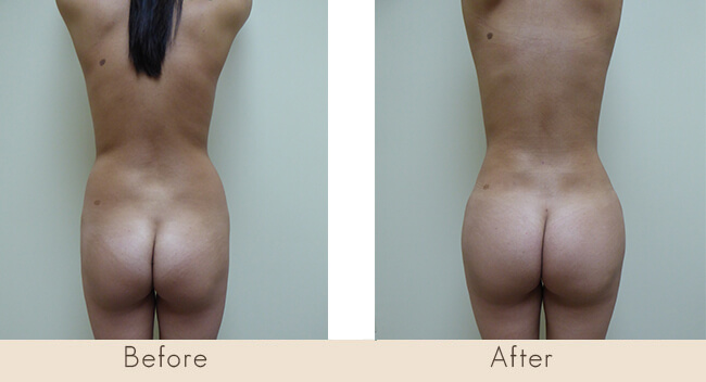 3 Month Post Surgery - External Ultrasonic Liposuction to Waist/Hip & Fat Transfer to Buttocks
