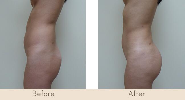 3 Month Post Surgery - External Ultrasonic Liposuction to Waist/Hip & Fat Transfer to Buttocks