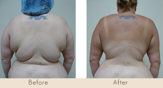 3 Months Post Surgery - External Ultrasonic Liposuction to Back with Smart Laser Liposuction to Back
