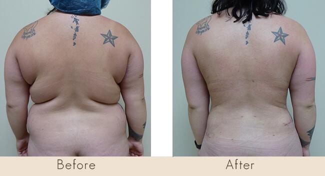3 Months Post Surgery – External Ultrasonic Liposuction to Back