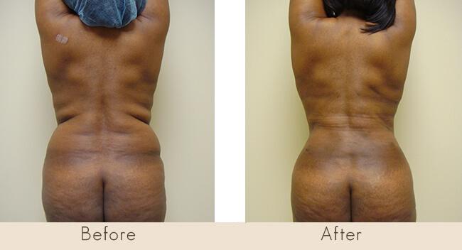 8 Weeks Post Surgery -  External Ultrasonic Liposuction to Back