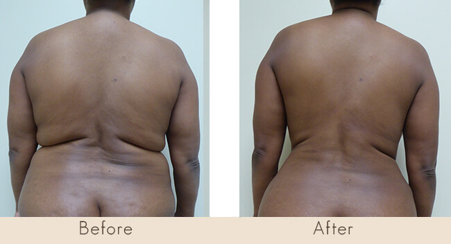 3 Months Post Surgery – External Ultrasonic Liposuction to Back with Smart Laser Liposuction to Back
