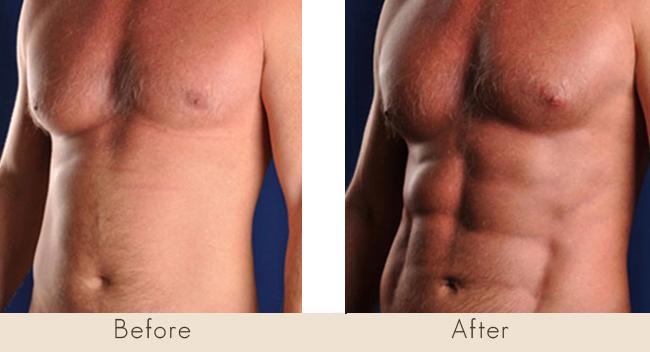 Hi Def Liposuction / Ab Sculpting