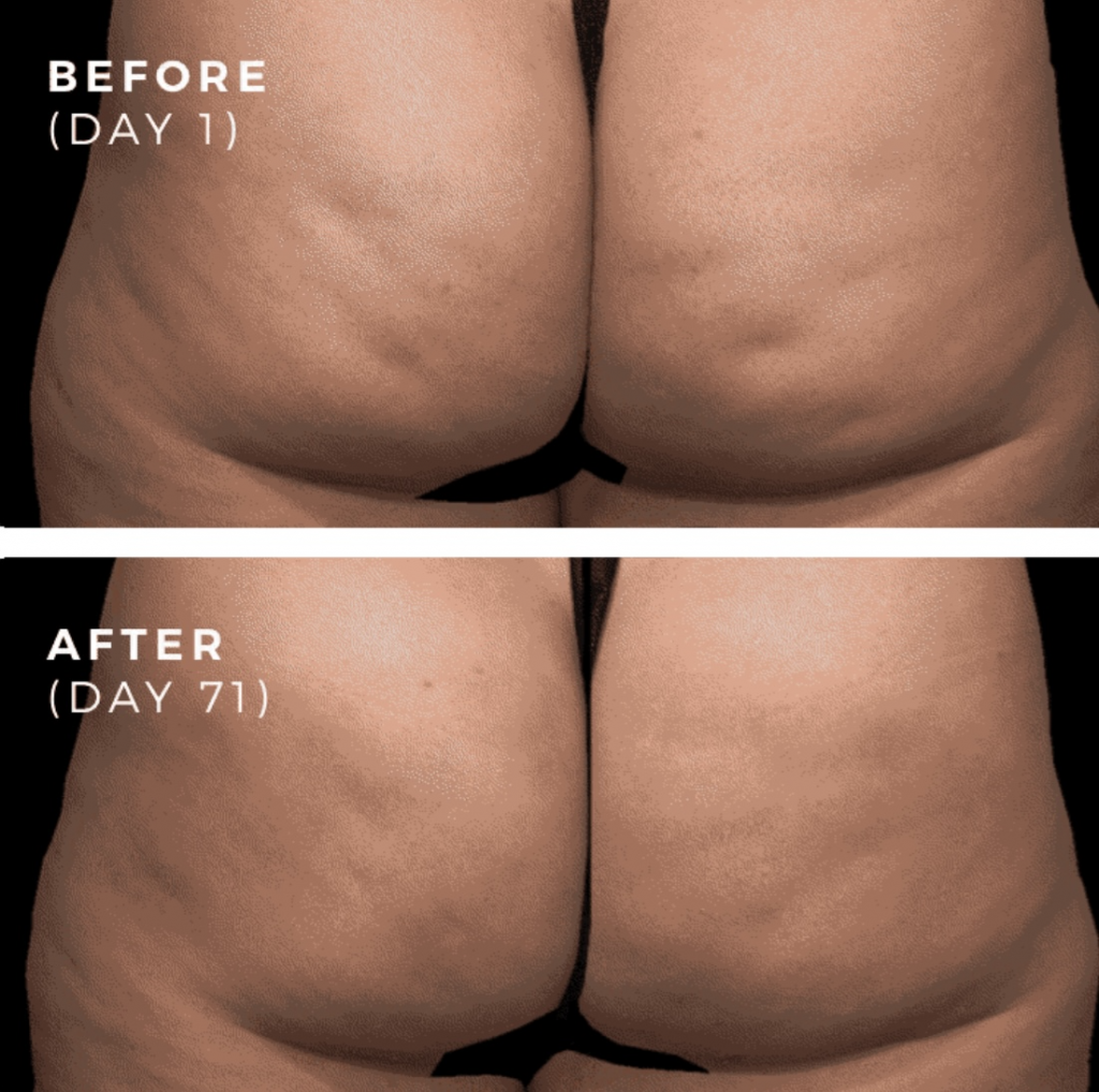 QWO Cellulite Injections